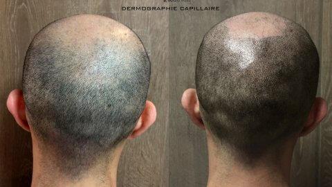 5-6-visuel-dermo-capil-
